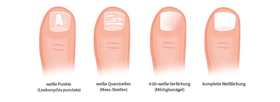 Zehennagel unterm schwarzer fleck Nagelverfärbungen: Ursachen